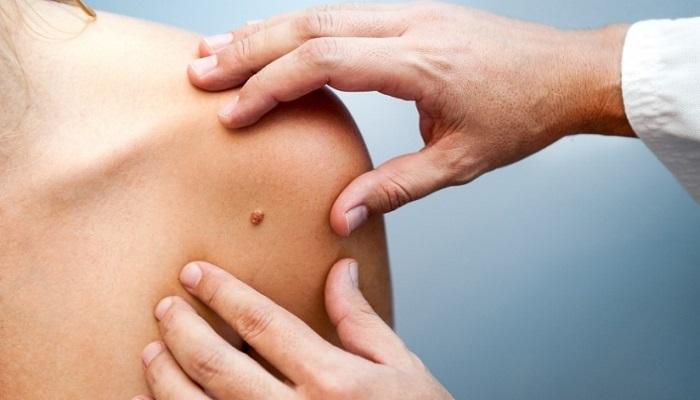 eemaldage liigne nahk kaalulangus fat loss meeste tervis
