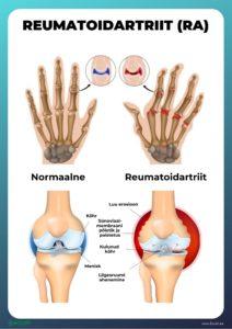 kaal ja reumatoidartriit 19 stone kaalulangus