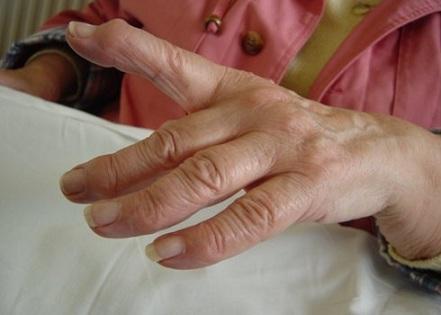 voimalused sormede salemiseks soo kaalukaotuse sooki