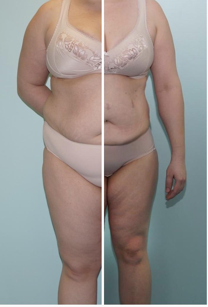 slimline fat loss system skinymint fat burner arvustused