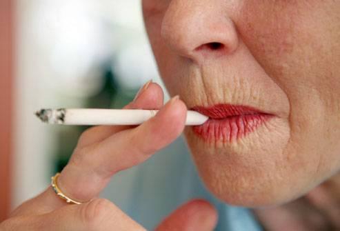 kuidas eemaldada ulemine huule rasv